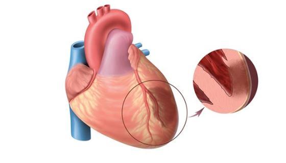 Что означает покалывание в области сердца