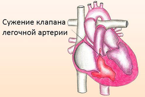 Сужение клапана легочной артерии