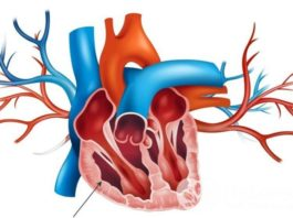 Гипертрофия стенки правого желудочка