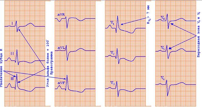 ЭКГ-признаки гипертрофии правого желудочка