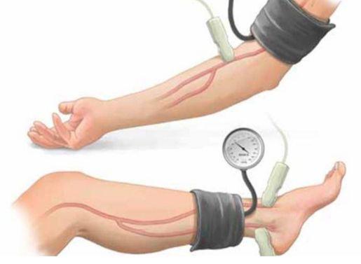 Давление на руке и ноге