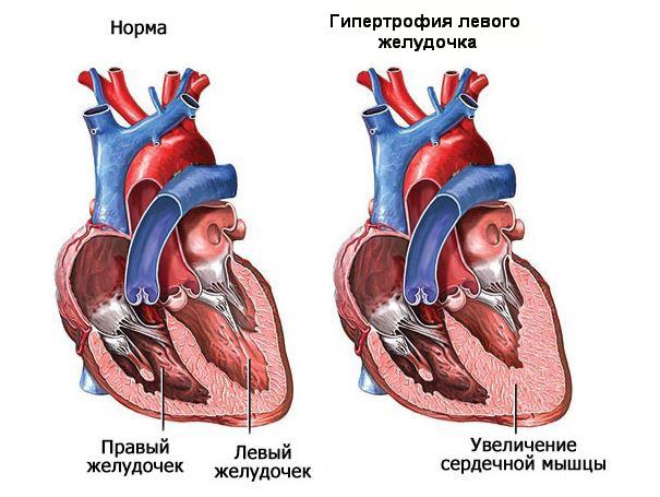 Увеличение левого желудочка