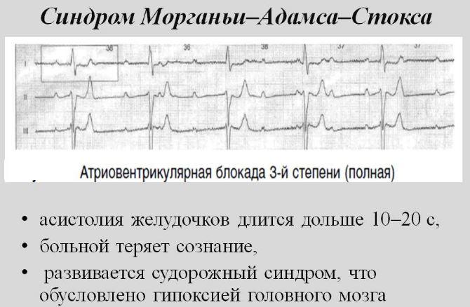 Синдром Морганьи-Адамса-Стокса