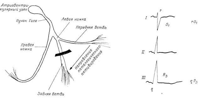 Проводящая система сердца и ЭКГ