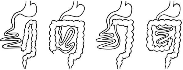 Мальротация кишечника