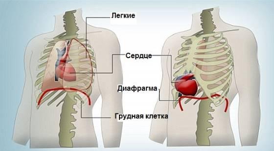 Что такое эктопия сердца