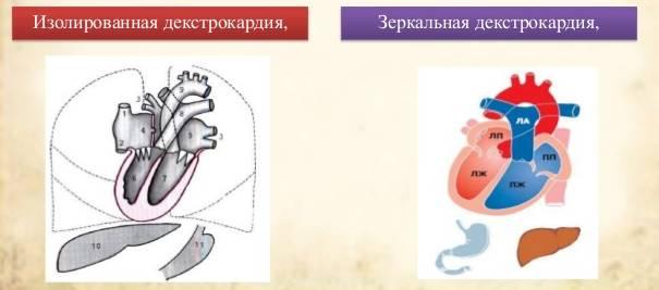 Атипичное расположение сердца