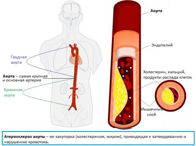 Склероз аорты