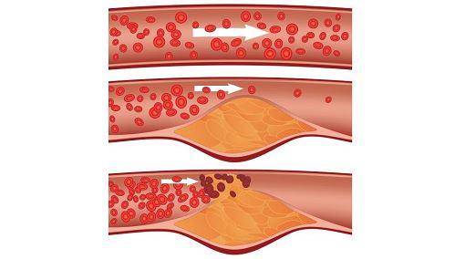 Аортосклероз