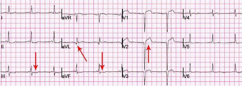 Аневризма сердца на ЭКГ