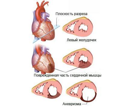 Постинфарктная аневризма