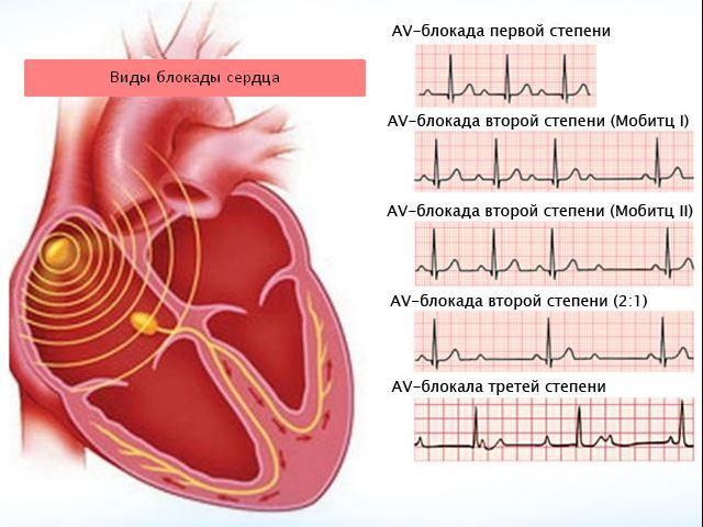 Виды блокад сердца на ЭКГ
