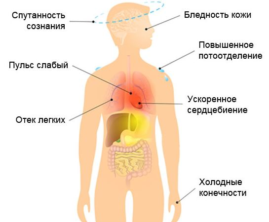 Признаки кардиогенного шока