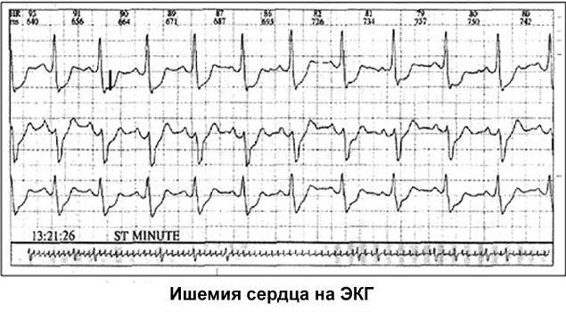 ЭКГ-картина кардиогенного шока