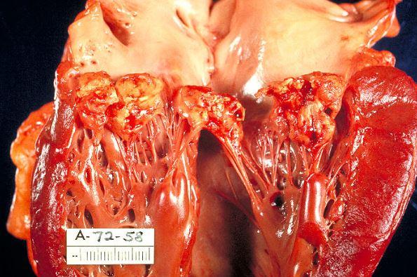 Ревматоидный кардит