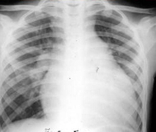 Тяжелая форма кардита на рентгенограмме