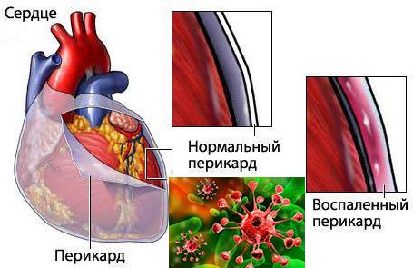 Бактериальный перикардит