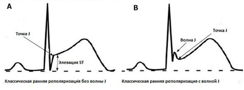 ЭКГ-картина СРРЖ