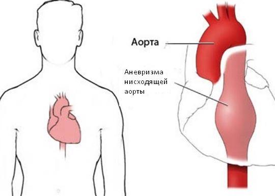 Аневризма нисходящей аорты