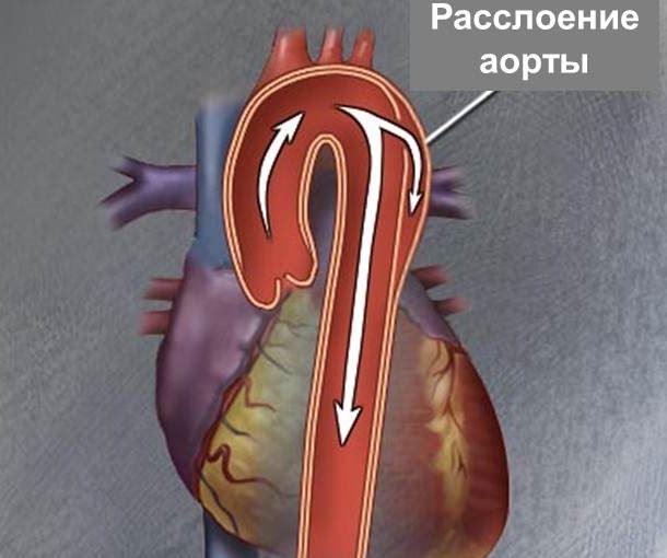 Расслоение стенки аорты