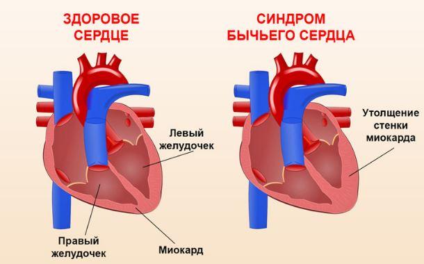 Синдром бычьего сердца