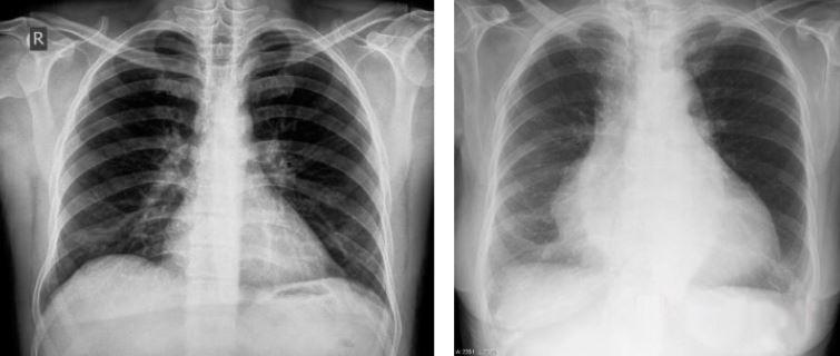Кардиомегалия на рентгенограмме