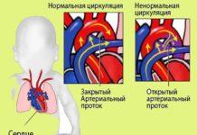 ОАП сердца