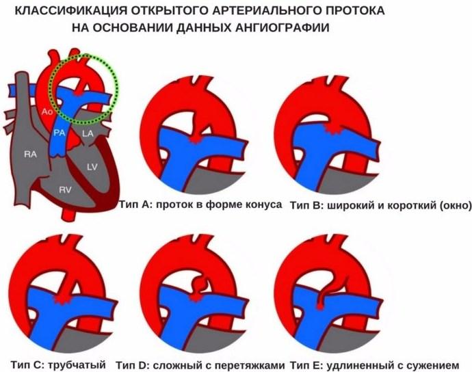 Классификация ОАП