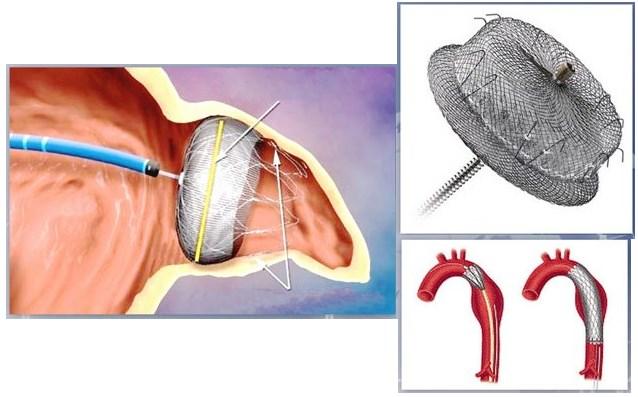 Эндоваскулярное лечение Боталлова протока