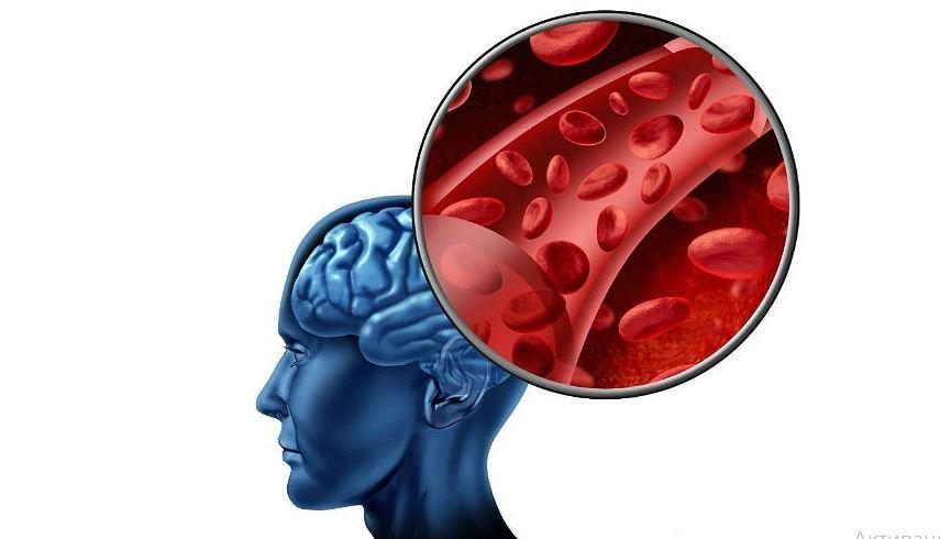 Транзиторная ишемическая атака головного мозга (ТИА): что это, симптомы