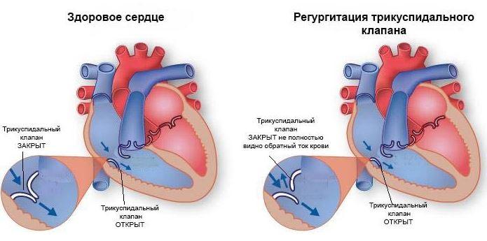 Трикуспидальная регергитация