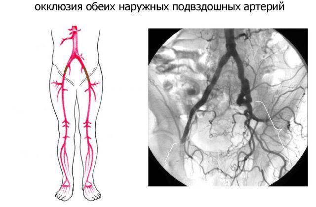 Окклюзия подвздошной артерии