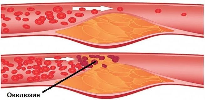Окклюзия артерии
