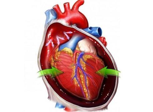 Тампонада сердца