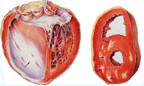 Постинфарктные рубцы