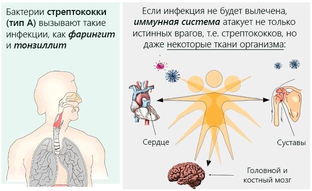 Механизм развития ревматизма