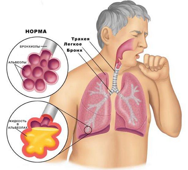Последствия застоя крови в малом круге кровообращения