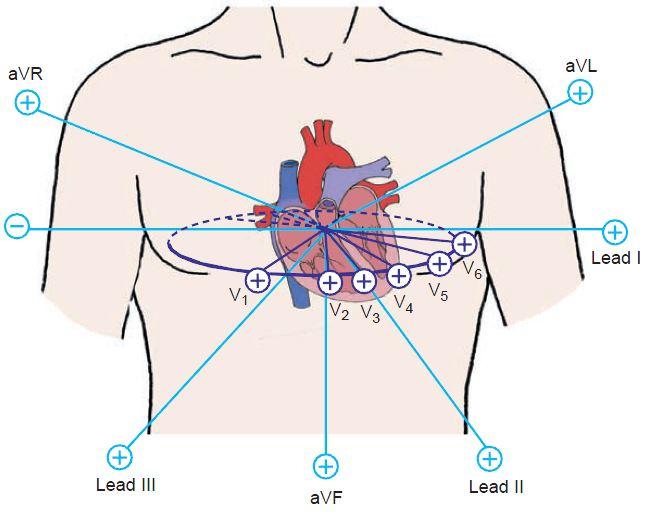 Горизонтальная эос в кардиограмме