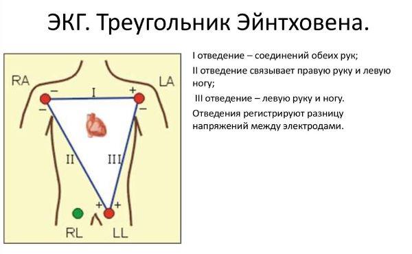 Треугольник Эйнтховена