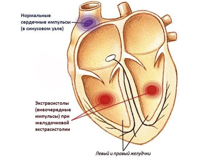 Желудочковая бигеминия сердца что это такое лечение