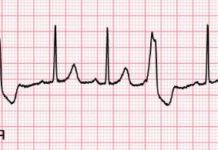 Тригеминия сердца