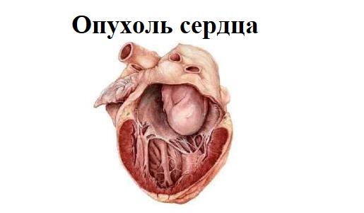 Опухоль сердца