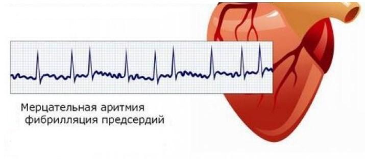 Мерцательная аритмия