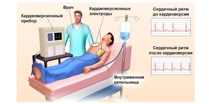 Что такое кардиоверсия