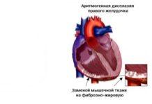Аритмогенная дисплазия правого желудочка сердца