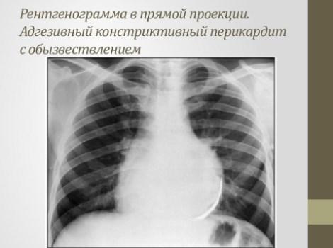 Рентгенограмма перикардита