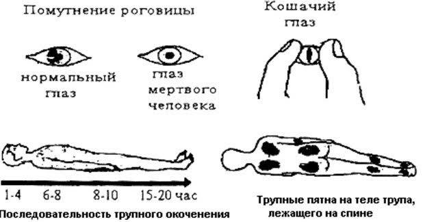 Биологическая смерть