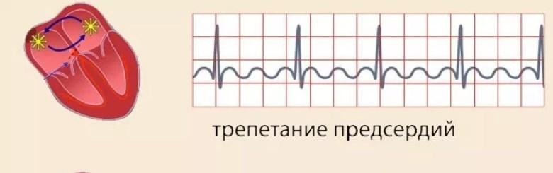 Трепещет сердце что принимать - Лечим сердце
