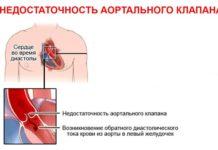 Недостаточность аортального клапана