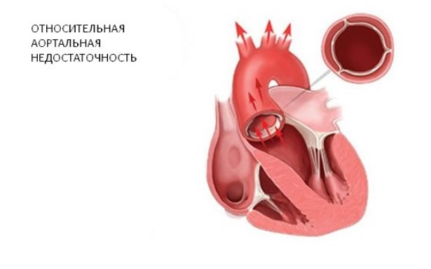 Относительная аортальная недостаточность